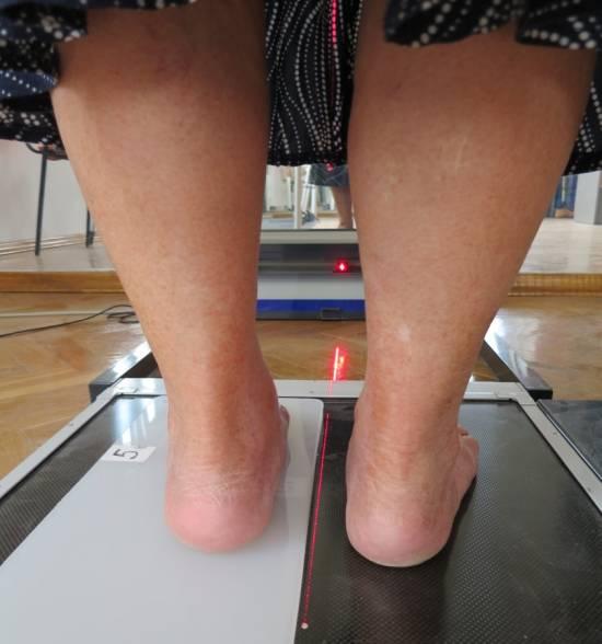 stopy, nogi, proteza, rehabilitacja, Proteza kosmetyczna palców, Protetica, Łódź, Zagajnikowa 35, poradnia protetyczna