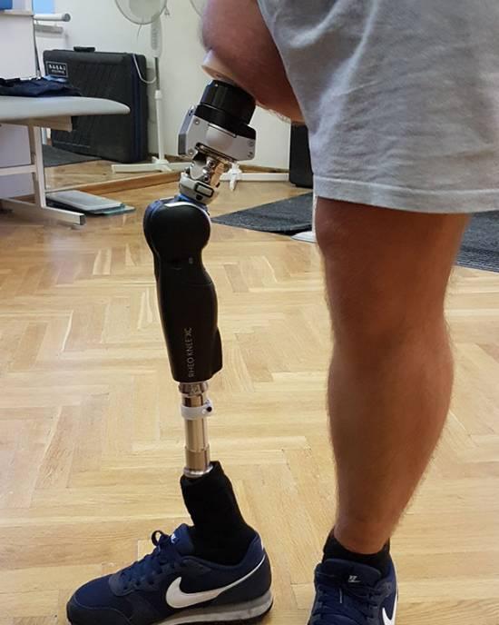 proteza nogi, nogi, rehabilitacja, Proteza kosmetyczna palców, Protetica, Łódź, Zagajnikowa 35, poradnia protetyczna