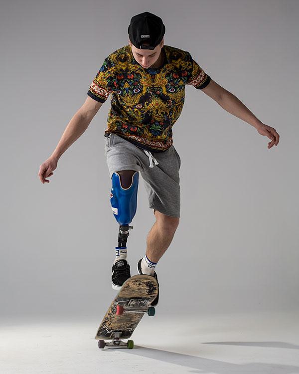 deskorolka, nastolatek, skok, proteza nogi, proteza sportowa, Proteza kosmetyczna palców, Protetica, Łódź, Zagajnikowa 35, poradnia protetyczna