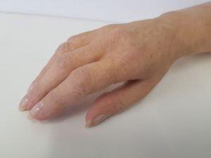 ręka, dłoń, palce, proteza kosmetyczna ręki, proteza estetyczna, Proteza kosmetyczna palców, Protetica, Łódź, Zagajnikowa 35, poradnia protetyczna
