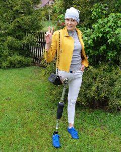 kobieta po amputacji nogi, proteza nogi, osoba niepełnosprawna, Proteza kosmetyczna palców, Protetica, Łódź, Zagajnikowa 35, poradnia protetyczna