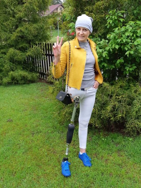 kobieta po amputacji nogi, proteza nogi, osoba niepełnosprawna, działka, drzewo, krzak, trawa, Proteza kosmetyczna palców, Protetica, Łódź, Zagajnikowa 35, poradnia protetyczna