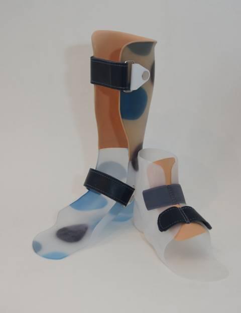 orteza, wkładki do butów, buty do ortez, orteza kończyn dolnych, Proteza kosmetyczna palców, Protetica, Łódź, Zagajnikowa 35, poradnia protetyczna