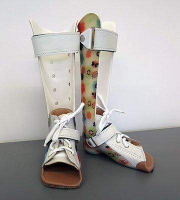 wkładki do butów, buty ortopedyczne, wsparcie stawów, buty do ortez, orteza kończyn dolnych, Proteza kosmetyczna palców, Protetica, Łódź, Zagajnikowa 35, poradnia protetyczna