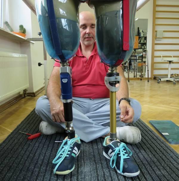 człowiek, buty, szkolenie, proteza kończyn, rehabilitacja, nogi, nogi po amputacji, Proteza kosmetyczna palców, Protetica, Łódź, Zagajnikowa 35, poradnia protetyczna