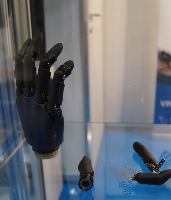Proteza mioelektrycznia, proteza nowoczesna, proteza dłoni, proteza palców, proteza sterowana, Proteza kosmetyczna palców, Protetica, Łódź, Zagajnikowa 35, poradnia protetyczna