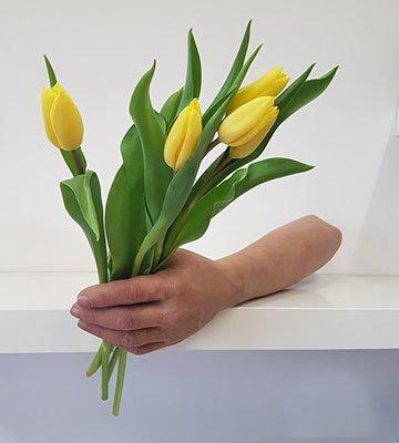 kwiaty, tulipany, dłoń, proteza estetyczna ręki, proteza kosmetyczna ręki, Proteza kosmetyczna palców, Protetica, Łódź, Zagajnikowa 35, poradnia protetyczna