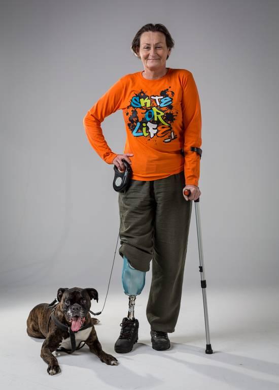 człowiek, pies, kula, proteza nogi, proteza ortopedyczna, amutacja nogi, uśmiechnięta kobieta, niepełnosprawny człowiek, Proteza kosmetyczna palców, Protetica, Łódź, Zagajnikowa 35, poradnia protetyczna