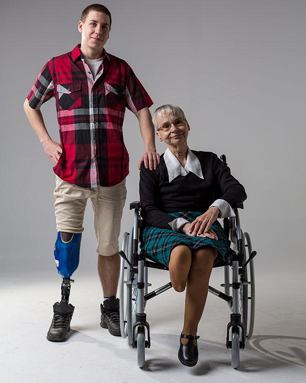 mężczyzna, kobieta, wózek inwalidzki, osoba niepełnosprawna, kobieta bez nogi, proteza nogi, Proteza kosmetyczna palców, Protetica, Łódź, Zagajnikowa 35, poradnia protetyczna