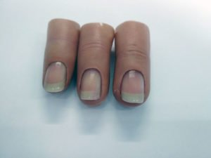 Proteza kosmetyczna palców, Protetica, Łódź, Zagajnikowa 35, poradnia protetyczna