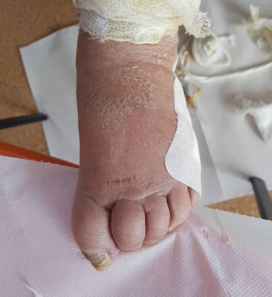 stopa cukrzycowa, choroba, bandaż, uraz, Proteza kosmetyczna palców, Protetica, Łódź, Zagajnikowa 35, poradnia protetyczna